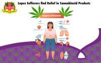 Lupus Sufferers find Relief in Cannabinoid Products, Cannabinoids Offer a Range of Benefits, Autoimmune and Anti-inflammatory Activity of Cannabinoids Lupus Sufferers find Relief in Cannabinoid Products