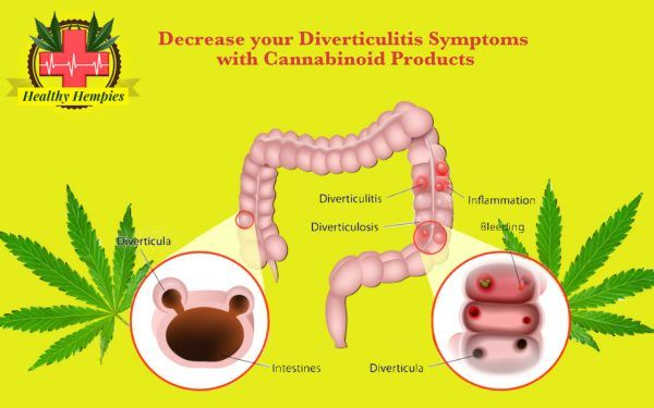 Cannabinoid Products may offer anti-inflammatory pain relief for Diverticulitis Symptoms such as Nausea and vomiting or pain and inflammation Decrease your Diverticulitis Symptoms with Cannabinoid Products