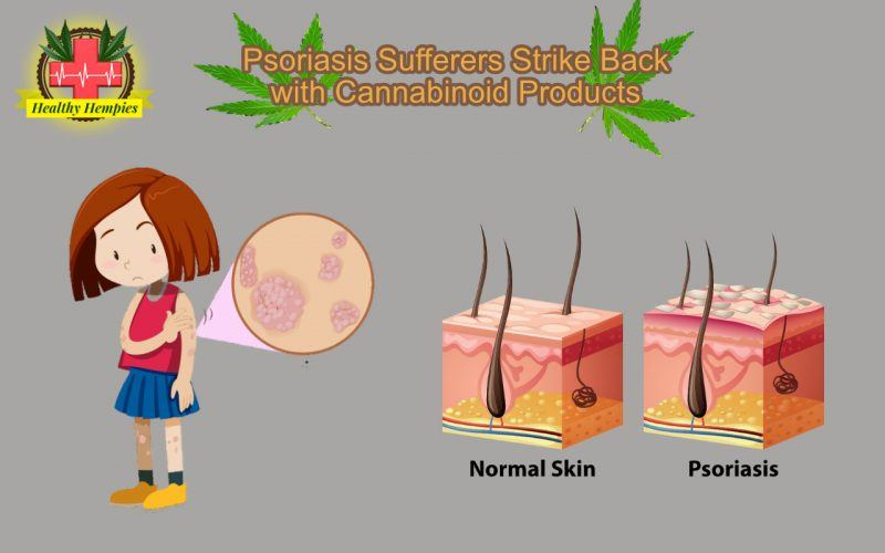 Psoriasis Psoriasis Sufferers Strike Back with Cannabinoid Products Reduce Inflammation, Slowing Cell Proliferation, Immune Health, Reducing Stress and Anxiety
