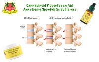 Cannabinoid Products can Aid Ankylosing Spondylitis Sufferers with Anti-inflammatory benefits Cannabinoid products relieve inflammation Cannabinoid Products can Aid Ankylosing Spondylitis Sufferers