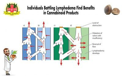Individuals Battling Lymphoedema Find Benefits in Cannabinoid Products, Causes & Symptoms of Lymphoedema, Cannabinoids Aid in the Management of Symptoms Individuals battling Lymphedema find benefits in cannabinoid products